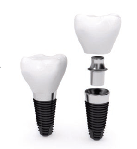 Diagram of a dental implant, with the crown separated from the post.